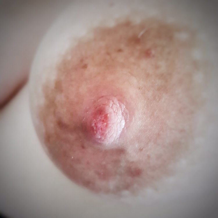 A macro close up shot of my nipple, demonstrating the large areola and somewhat freckly pink colouring