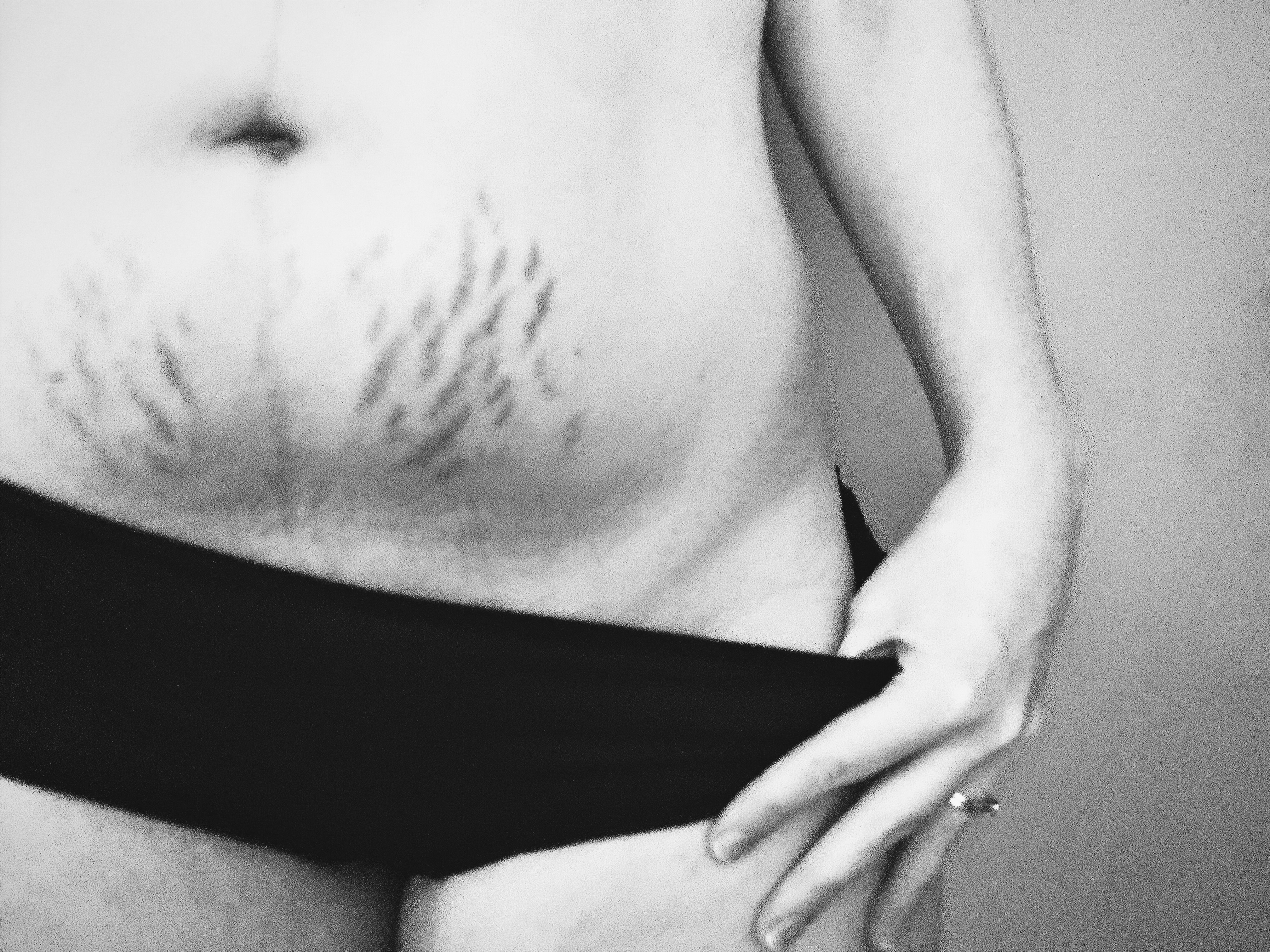 A black and white image of my lower abdomen, showing dark stretch marks on either side of my belly button and a dark linea nigra up the centre. I am wearing simple black knickers and my left hand is pulling down the side.