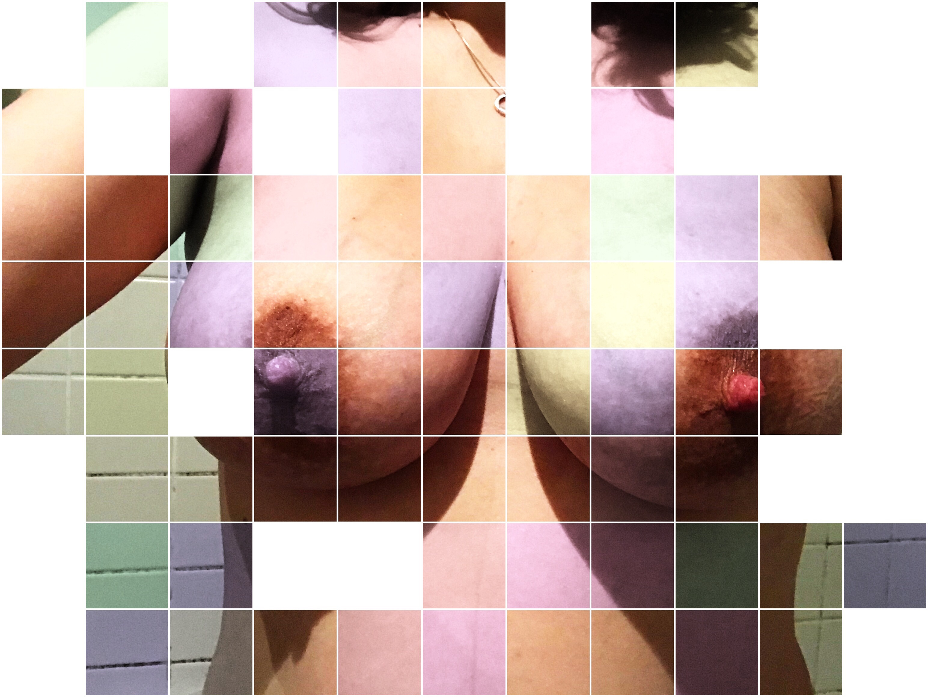 An image of my breasts, divided into squares. Some squares are discoloured, some are blank and some are normal.