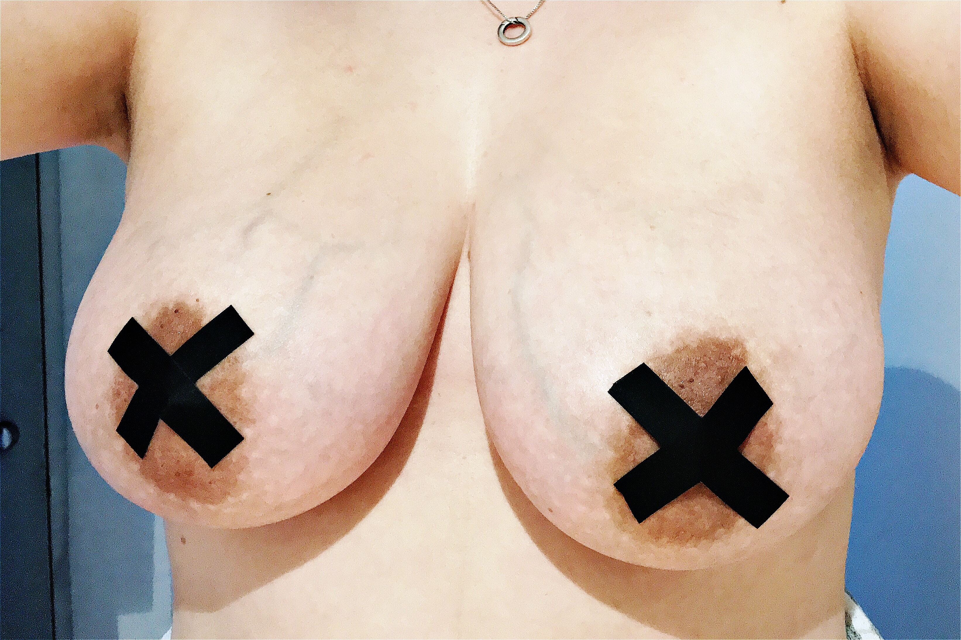 A photo of my breasts with a black 'X' taped over my nipples