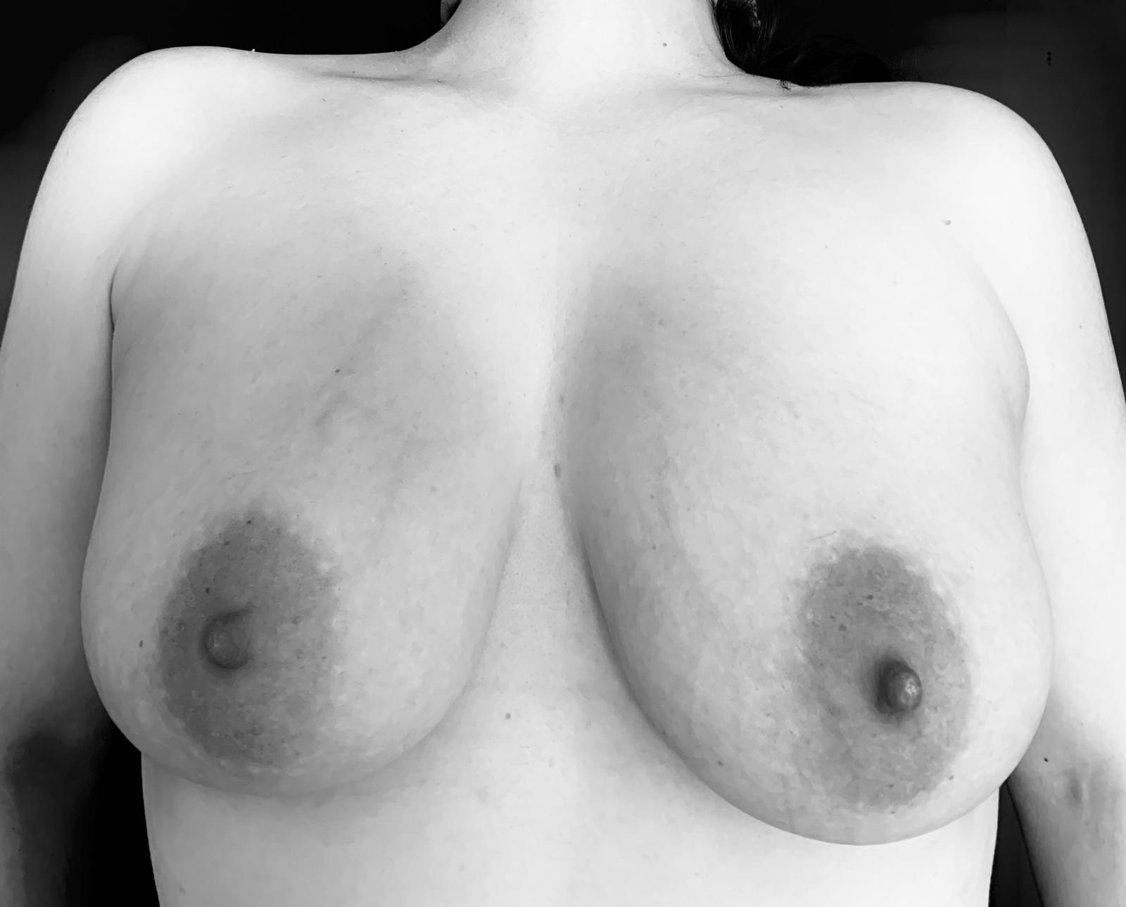 Simplicity - a black and white image of my breasts